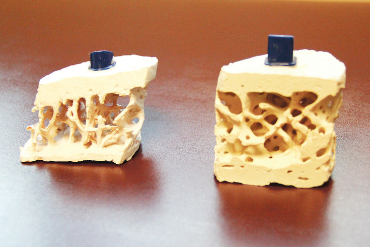 Bone models show healthy bone density, on the right, compared to weak bone density, on the left. All bones begin to lose density in a person's 20s, but nutrition and weight-bearing exercise can retain density into most individuals' later years.