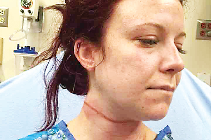Vanessa Ursini shares photos of her injuries on social media after a man attacked her while she was walking her dog on a popular trail near South Platte Park in Littleton. The incident occurred on July 25 and the suspect is in custody.