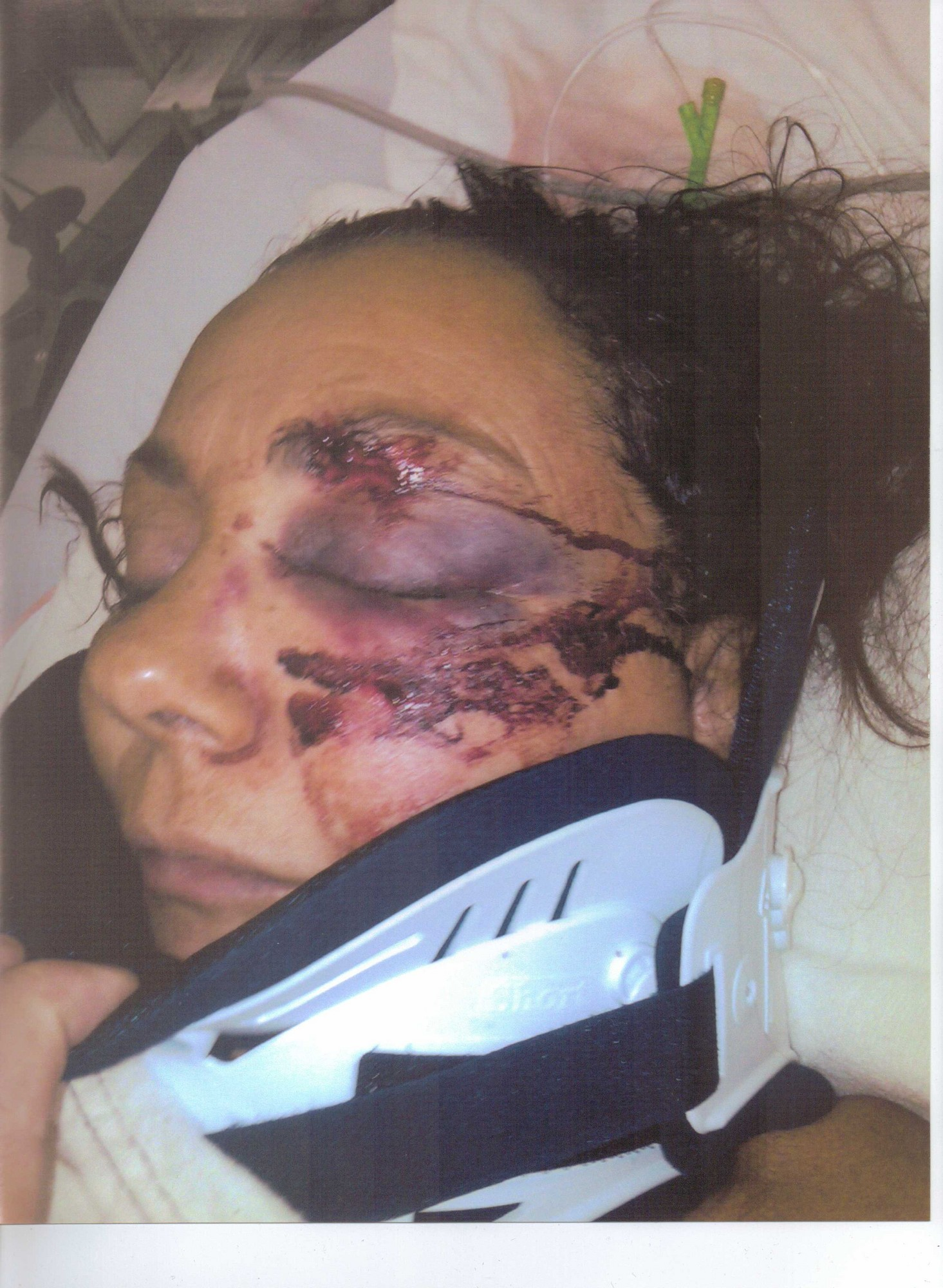 Marie Sweeny in the hospital after the attack in  Sept. 2010.