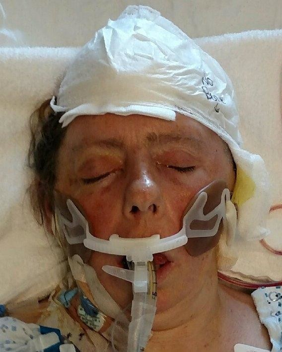 A vehicle struck this woman, who the police are not identifying, in Inwood on April 13.