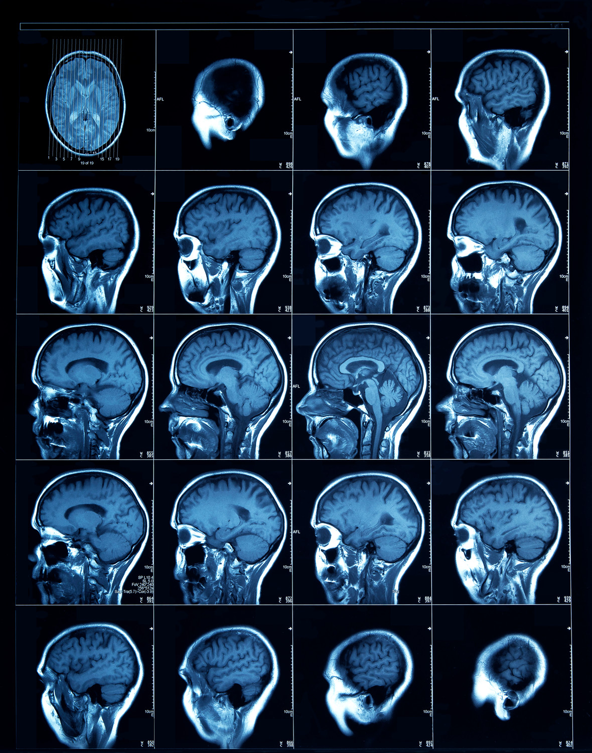 CT scan images of an adult can offer information on the brain, including how stress affects it.