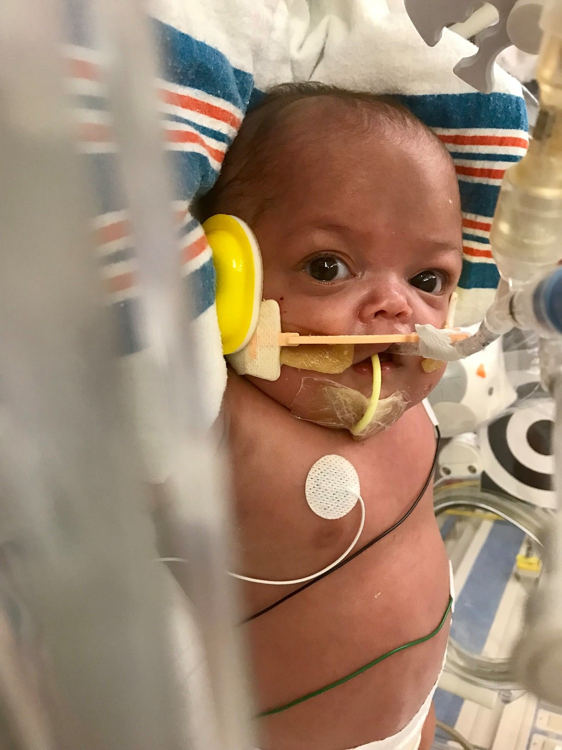 Eight-month-old Dominic Brucculeri was at NYU Winthrop Hospital before his transfer to Children's Hospital of Philadelphia.