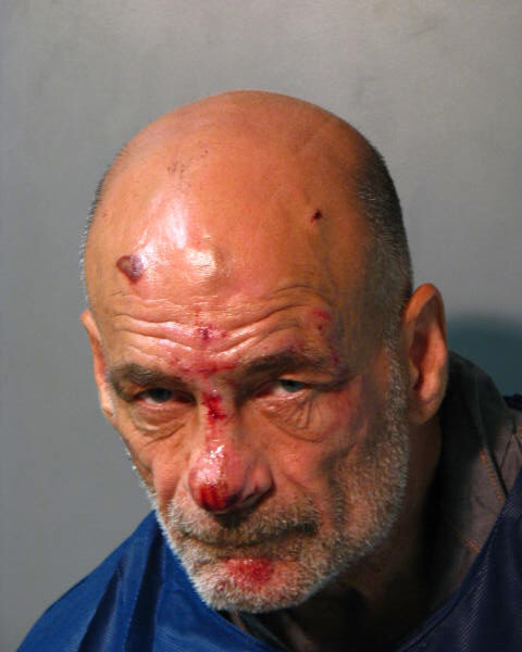 Joseph Hores, 56, of Freeport, was arrested after he allegedly kicked his doctor in the face, punched a responding public safety officer and, later, set fire to his bed sheets, police said.
