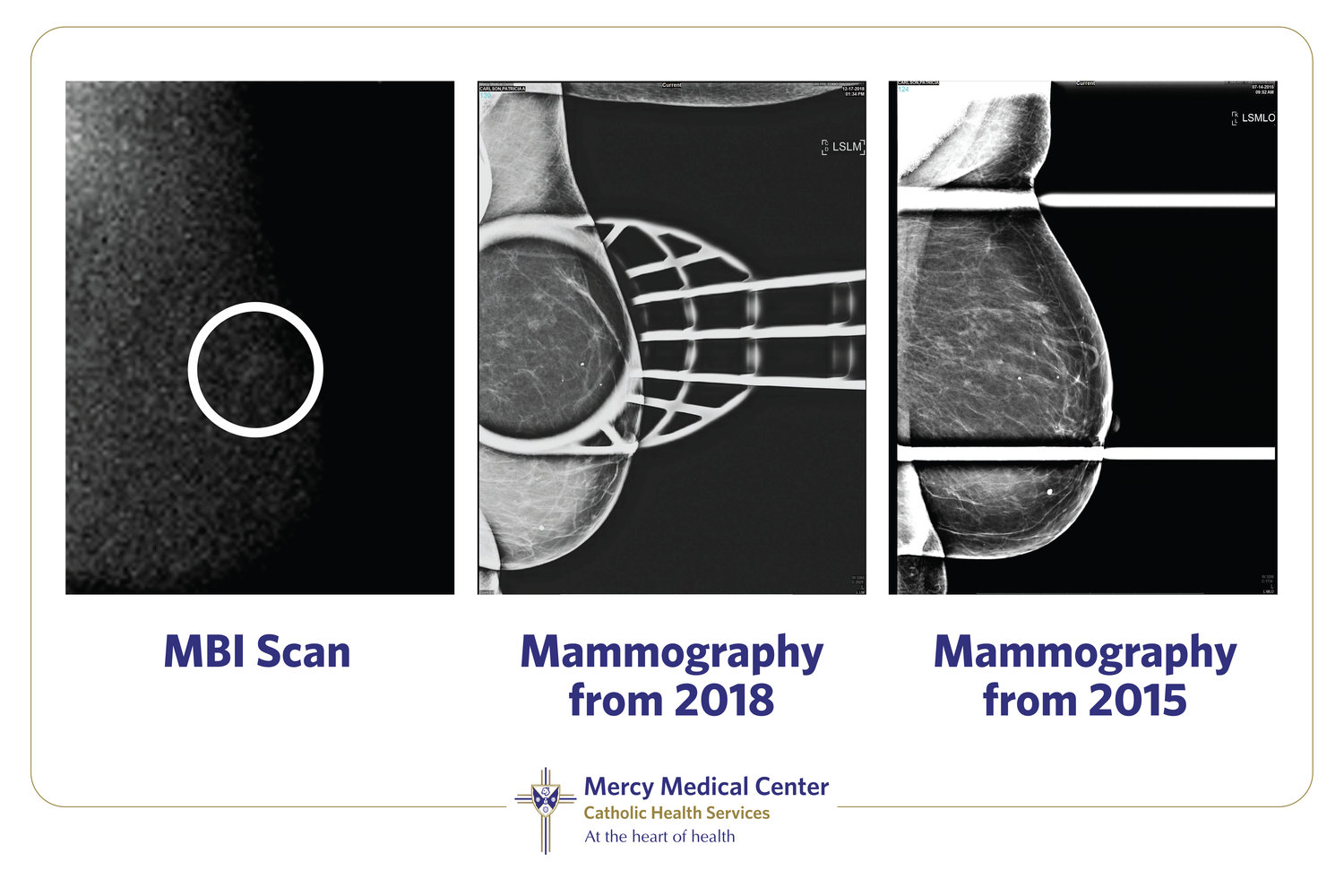 Mercy Medical Center displayed photos of Carlson's previous mammography screenings beside her MBI, which shows its precision, compared to traditional technologies.